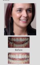 Cosmetic Dentistry Perth