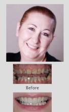 Cosmetic Dentist Perth