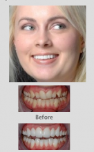 Cosmetic Dentists Perth