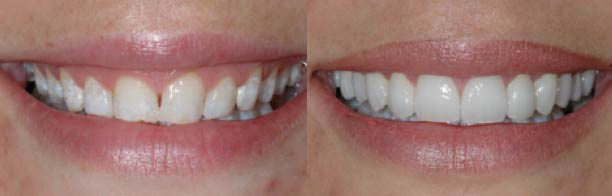 Consider Laser recontouring to reduce gumminess and improve gum symmetry.