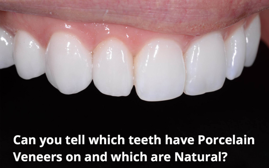 Perth Cosmetic Dentist Explains The Things You Should Know To Help You Decide If Porcelain Veneers Are For You